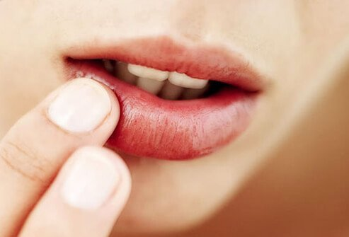 Herpesul – cause și remedii